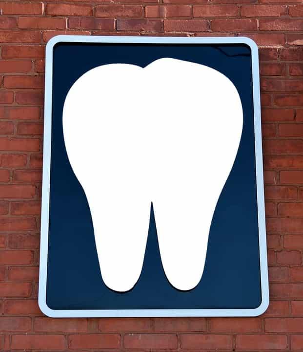 Döntsünk bátran a fog implantátum mellett!
